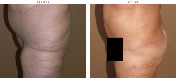 Before after bikini wax